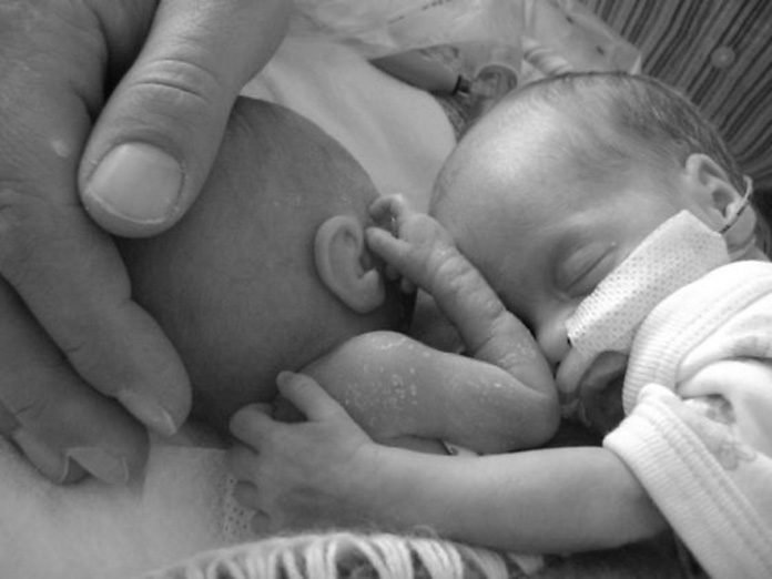 An Amazing Survival Story of a Premature Twin Baby