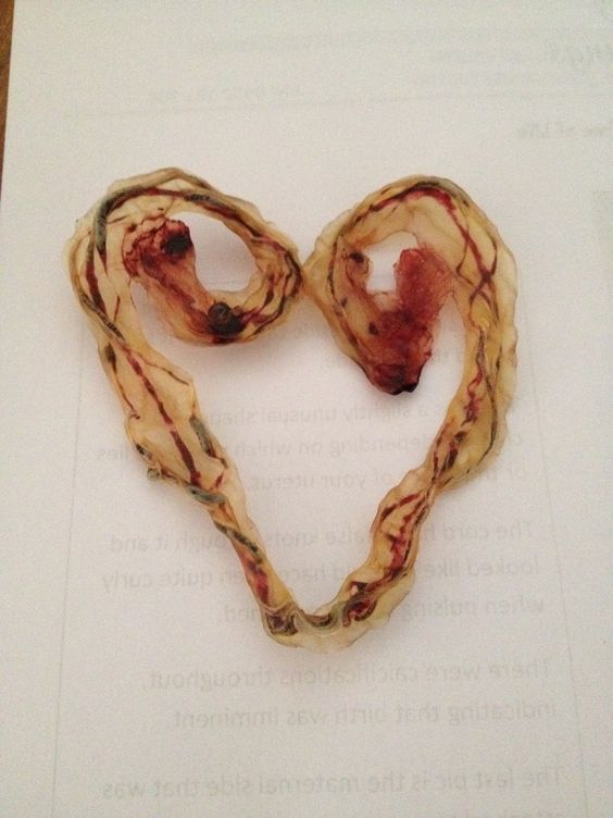 umbilical cord heart